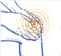 Arthrolon - sur les articulations – avis – composition – effets secondaires