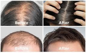 Hair Revital X – pour la perte de cheveux - comprimés – en pharmacie – composition