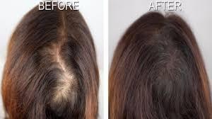 Hair Revital X – pour la perte de cheveux - forum – Amazon – effets